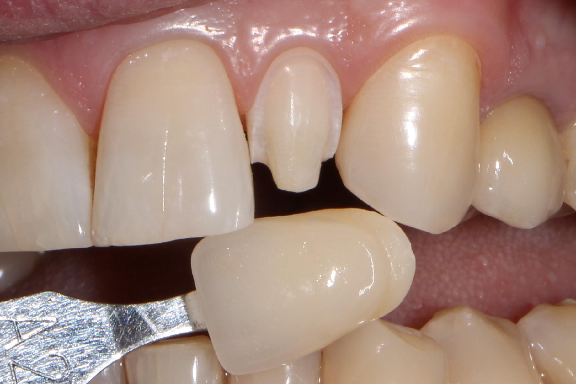 накладные виниры perfect smile veneers на зубы