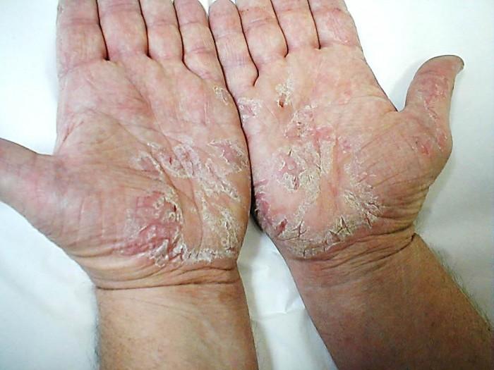 Что делать если слазит кожа на пальцах 2