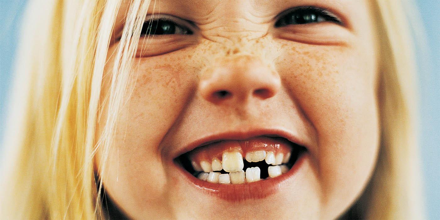 Почистили зубы и отсосала 30 фотография