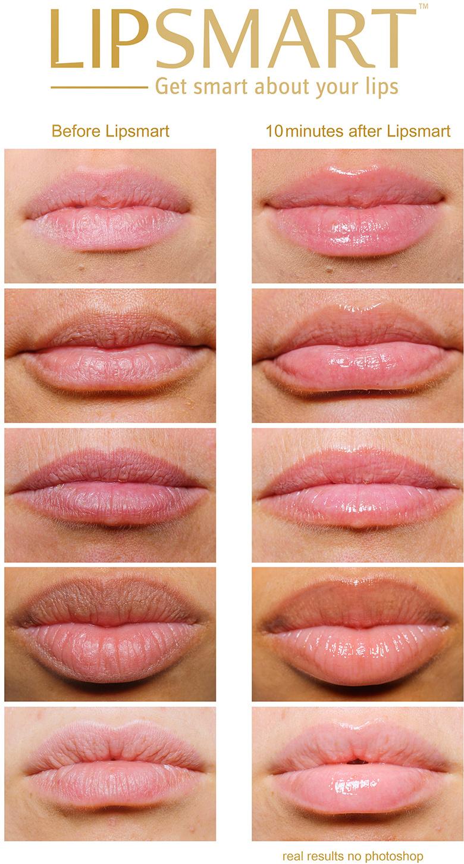 Ассиметрия половых губ 20 фотография