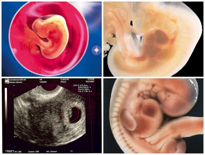 Опасный срок при беременности