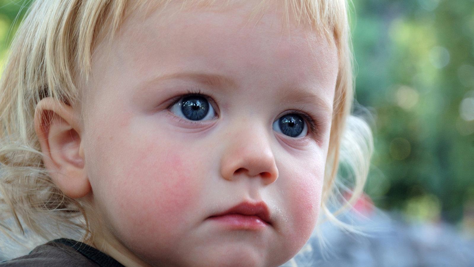 Как выглядит короткая уздечка у ребенка фото