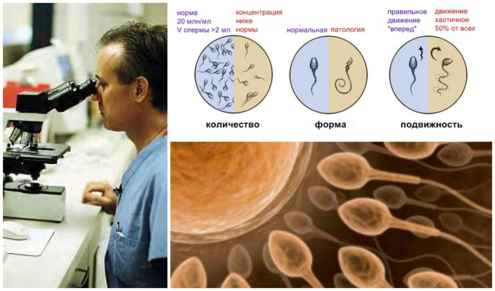 sdaval-spermogrammu-v
