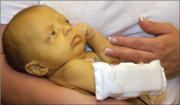 Сколько лежат в больнице с желтухой новорожденные