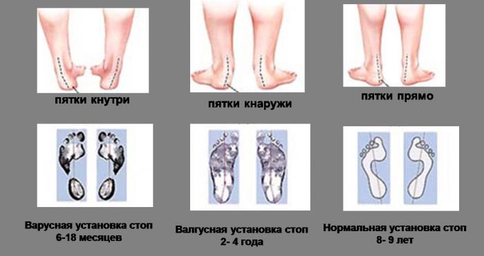 Причины вальгусной стопы