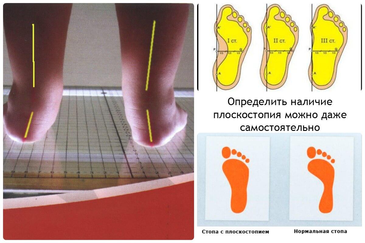 2 степень плоскостопия у ребенка как лечить