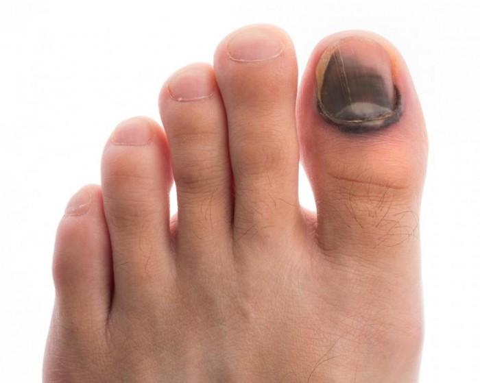 Чаще всего происходят ушибы большого пальца на ноге.