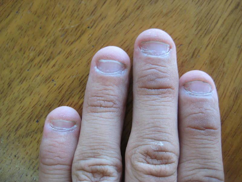 Какие могут быть ногти если их грызть