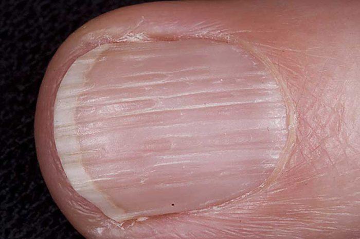 Бугристые ногти почему