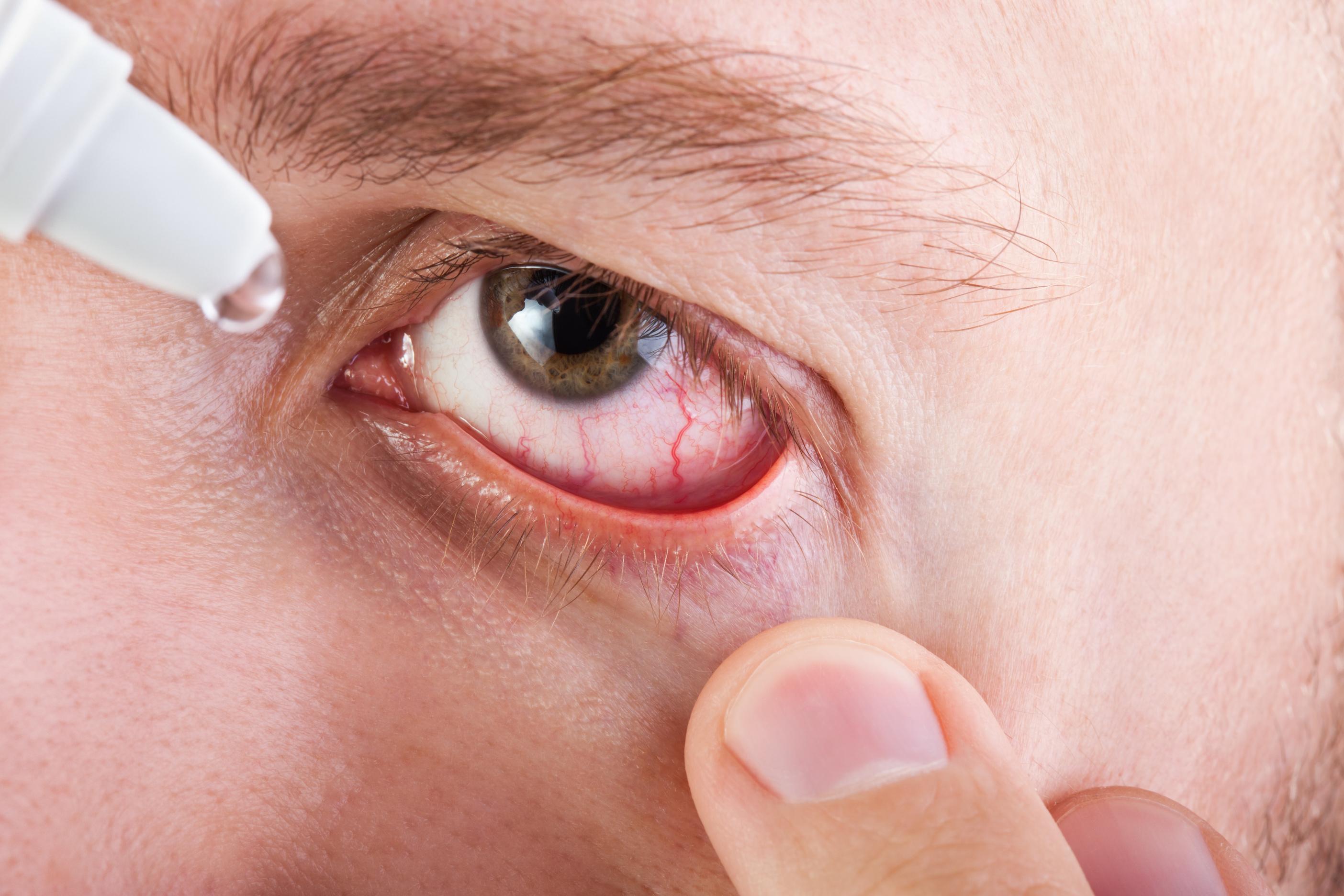 Если болят глаза: Сухая слизистая
