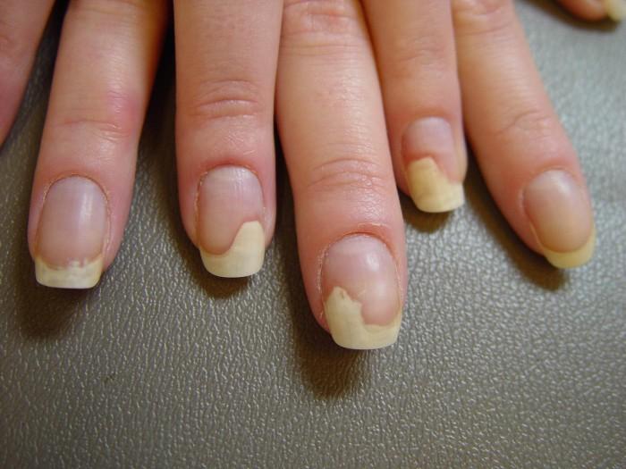 Обгрызенные ногти до и после фото