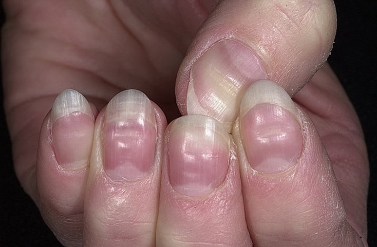 Если ногти на ногах волнистые что это