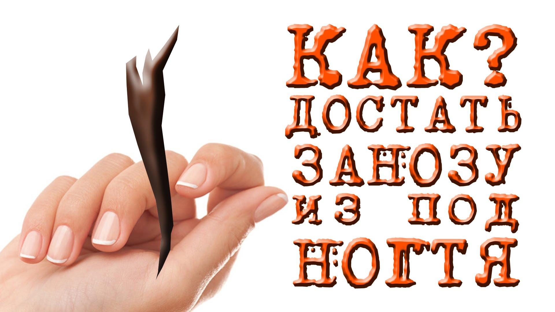 Картинки по запросу gif занозы на руках от шипов