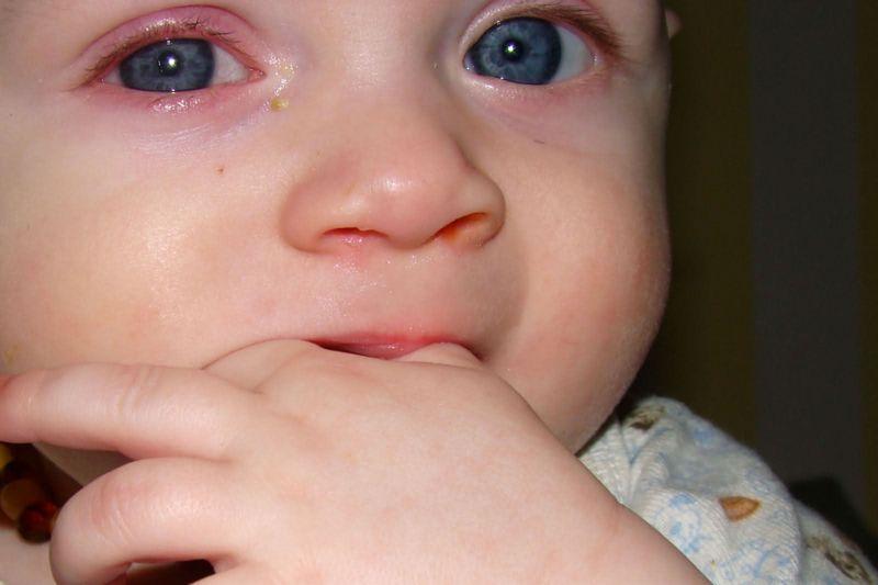 Как долго лечить вирусный конъюнктивит у детей