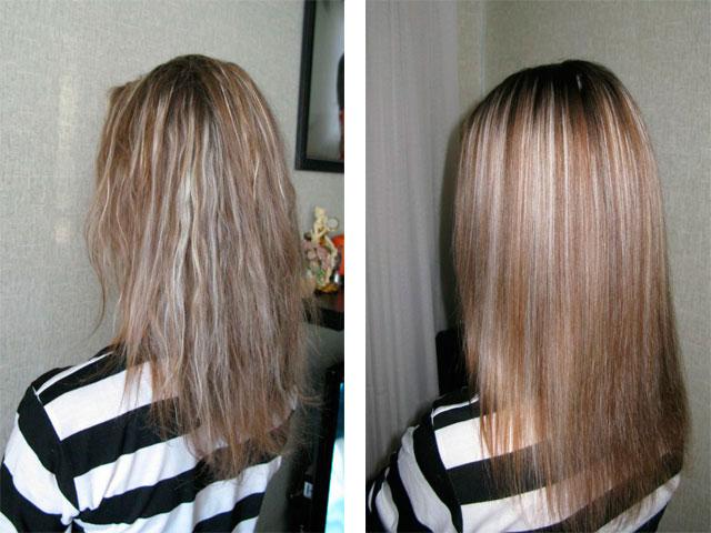 Волосы после ботокса выпадают