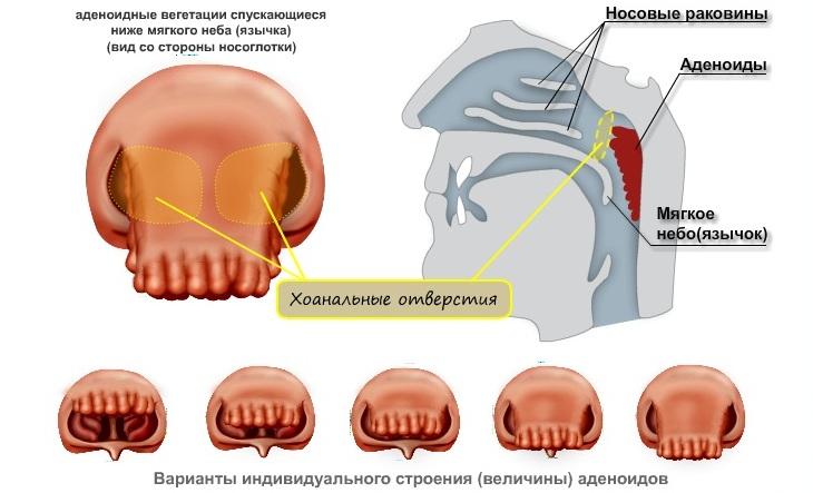 Лечение аденоидов у ребенка схема