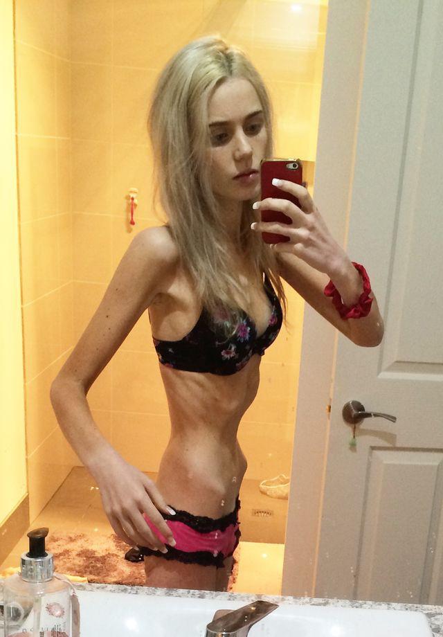 Секс девушки анорексия фото 436-273