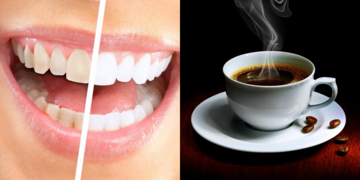 Кофе - напиток, способный окрасить зубы в желтый цвет.