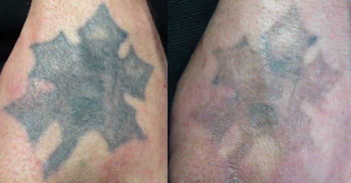 можноли спасателем обрабатывать татуировки интернете продолжают всплывать