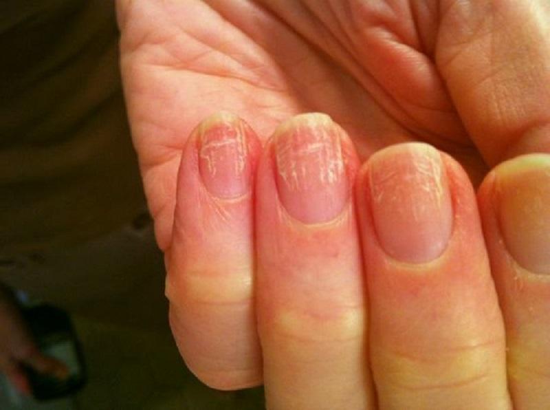 Лечение грибка ногтей на руках симптомы