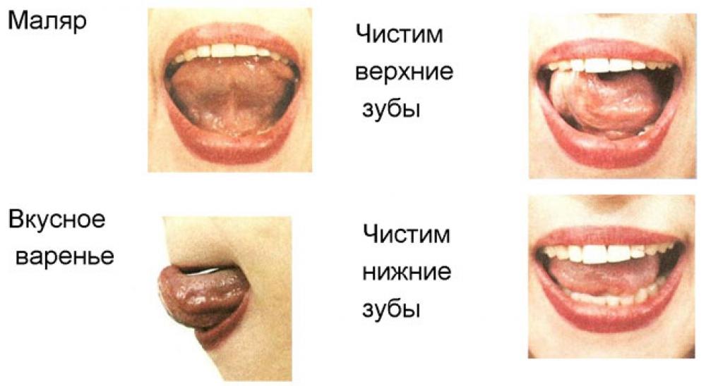 Что делать если натер язык об зуб