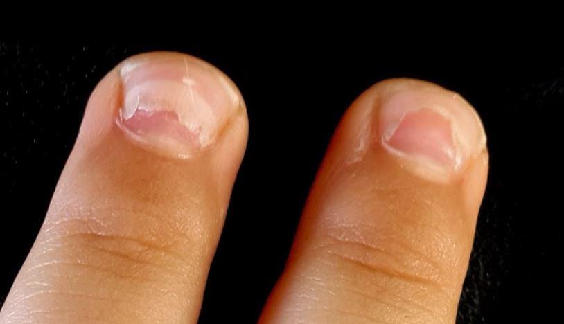 Ребенок отслаивается основание ногтя