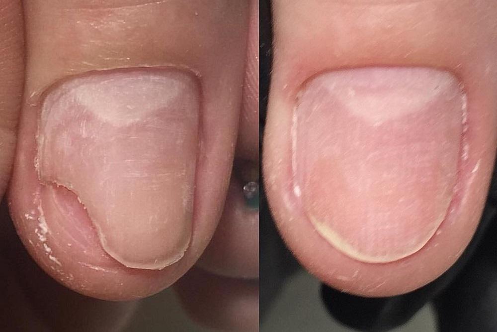 Палец руки без ногтя 12
