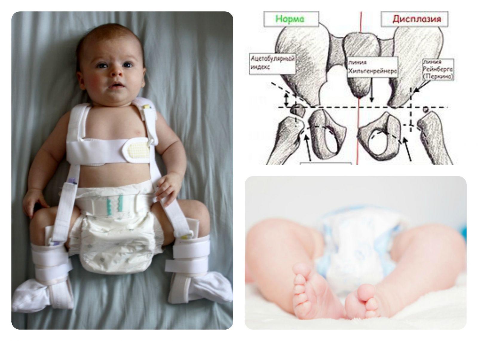 фото дисплазия тазобедренных суставов у детей